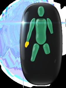 Ausencia de un antebrazo, de una pierna (a mitad de la rodilla) y de una pierna (por encima de la rodilla). El movimiento de una mano también está ligeramente limitado.