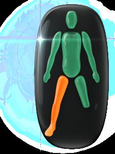 Transtorno do movimento de grau moderado em uma das pernas e ausência da outra perna abaixo do joelho.