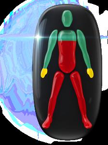 Transtorno do movimento e falta de coordenação motora de alto grau do peito para baixo e nas pernas e de baixo grau nas mãos.